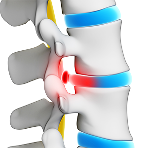 Herniated or Bulging Discs